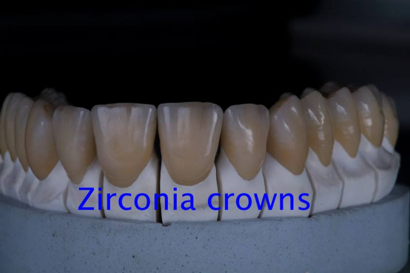 zirconia crown & bridges